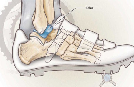 Osteochondral Talus Fracture