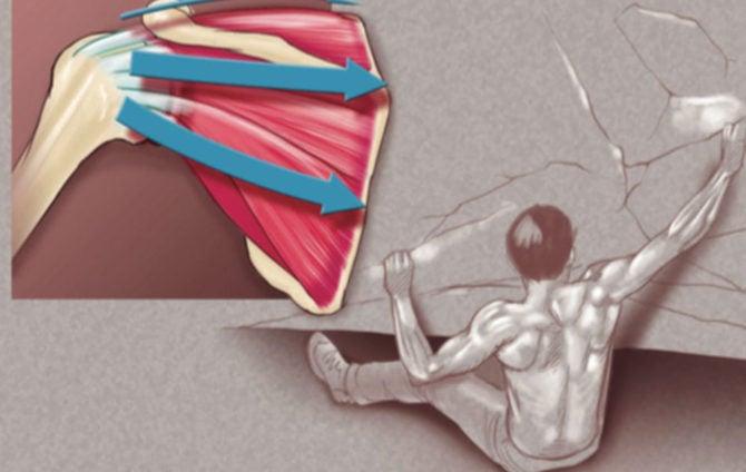 Shouldering the Burden