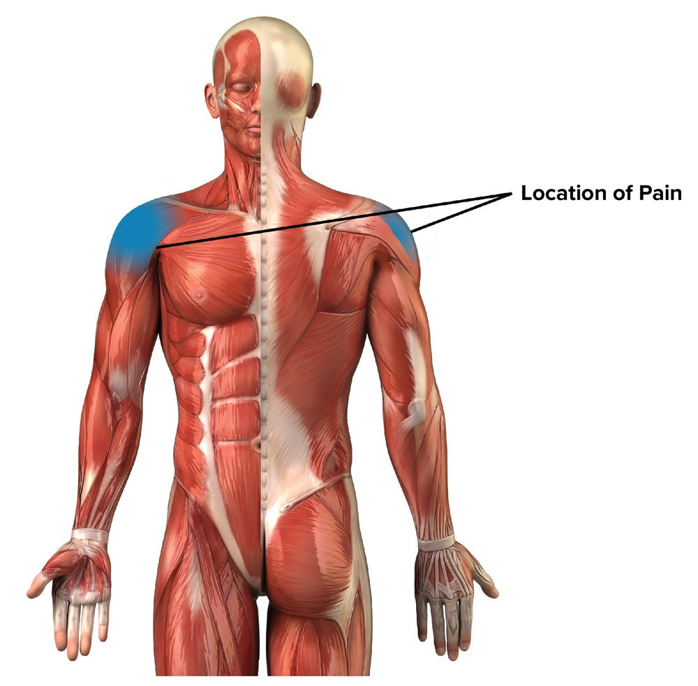 Shoulder impingement. Photo courtesy of Dr. Jared Vagy.