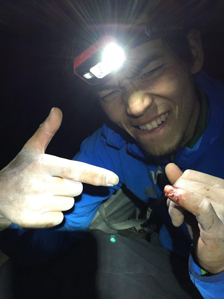 Kurakami shredded his pinky finger while working the crux pitches not long before his final redpoint attempt. Photo: Courtesy of Keita Kurakami.